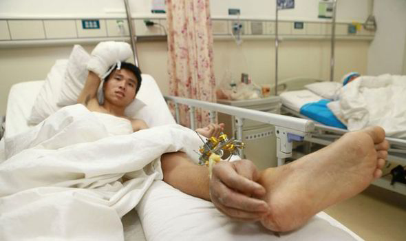 severed limb can be reattached to body